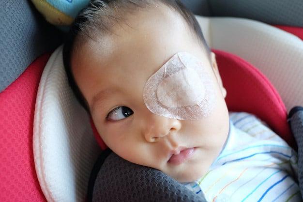 infante con cerotto per curare ambliopia