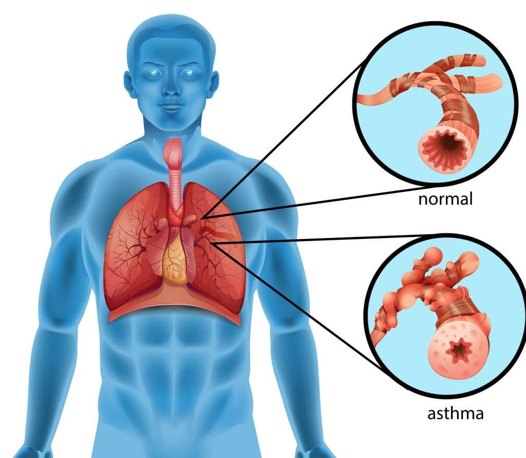 Infiammazione dei bronchi in soggetti affetti di asma