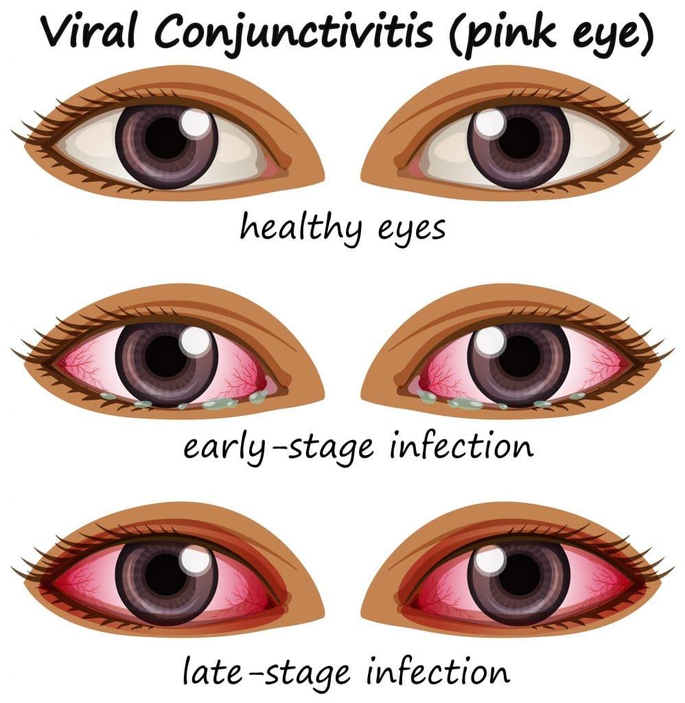 Stadi di congiuntivite da covid: tre paia di occhi in diversi momenti dell'infezione.