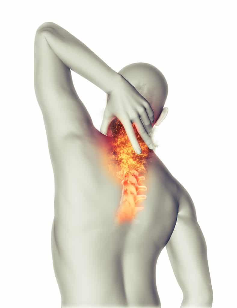Immagine 3D di schiena di uomo con fuoco sul collo e la cervicale per mostrare i dolori di collo bloccato