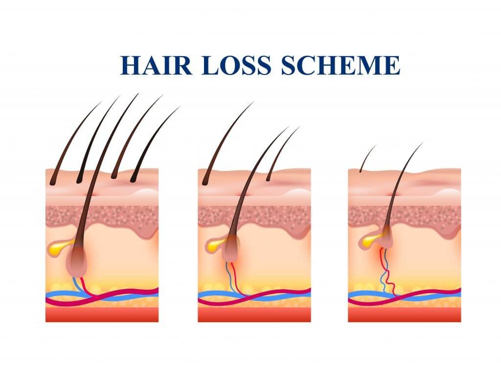 Schema con immagini delle fasi della perdita dei capelli