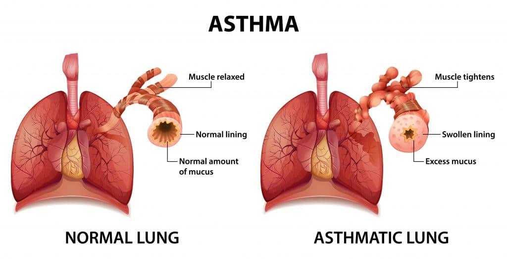 come curare l'asma - esempio di polmoni a confronto